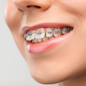 Dental Braces: What To Expect?