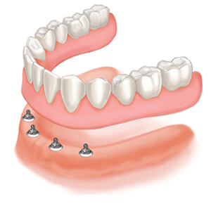 Dentures Sacramento California