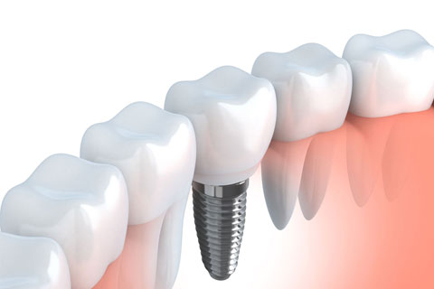 Restoring The Missing Tooth With Dental Implants