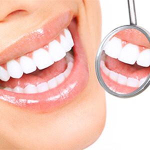 Teeth Whitening – After Care