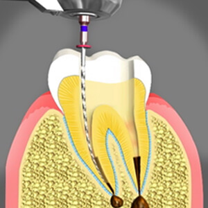 Non Surgical Root Canal Sacramento California