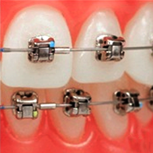 Dental Braces Sacramento CA